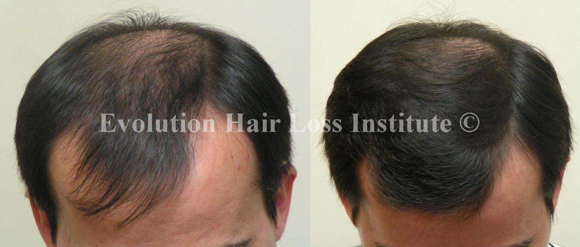 Hyperthyroidism Hair Loss Natural Treatment