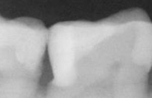 Radiograph-before-small-300x194