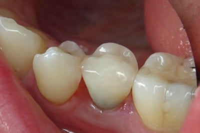 One-Visit-Crown-OVC3-Case-study-OVC-lower-pre-molar-endo-treated-tooth-after-from-side