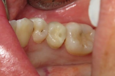 One-Visit-Crown-OVC3-Case-study-OVC-lower-pre-molar-endo-treated-tooth-before-from-top