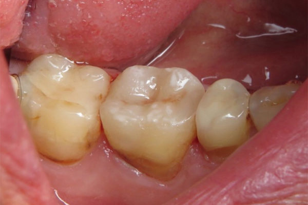 One-Visit-Crown-OVC3-Case-study-ovc3-weakened-molar-after-from-top