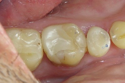 One-Visit-Crown-OVC3-Case-study-ovc3-weakened-molar-before-from-top