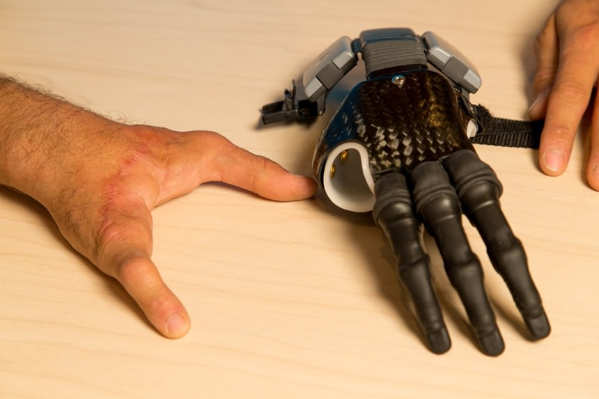 ae6905438f Arm Dynamics patient with myoelectric finger prosthesis ...