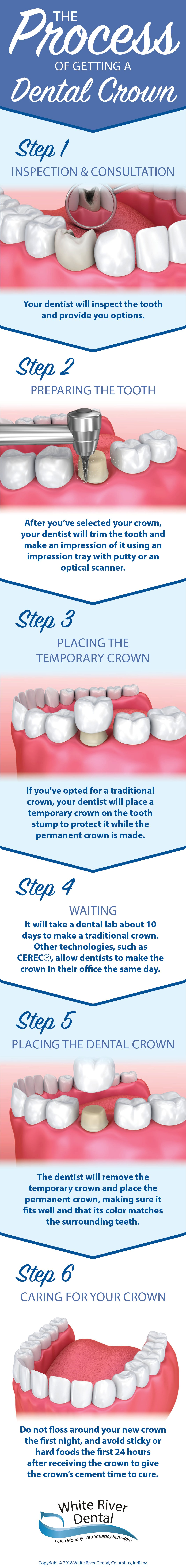 What's Involved with a Dental Crown Procedure