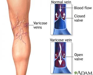 Illustration of a varicose veins on a leg, along with the normal and varicose vein comparison and which identifies varicose veins overweight blog.