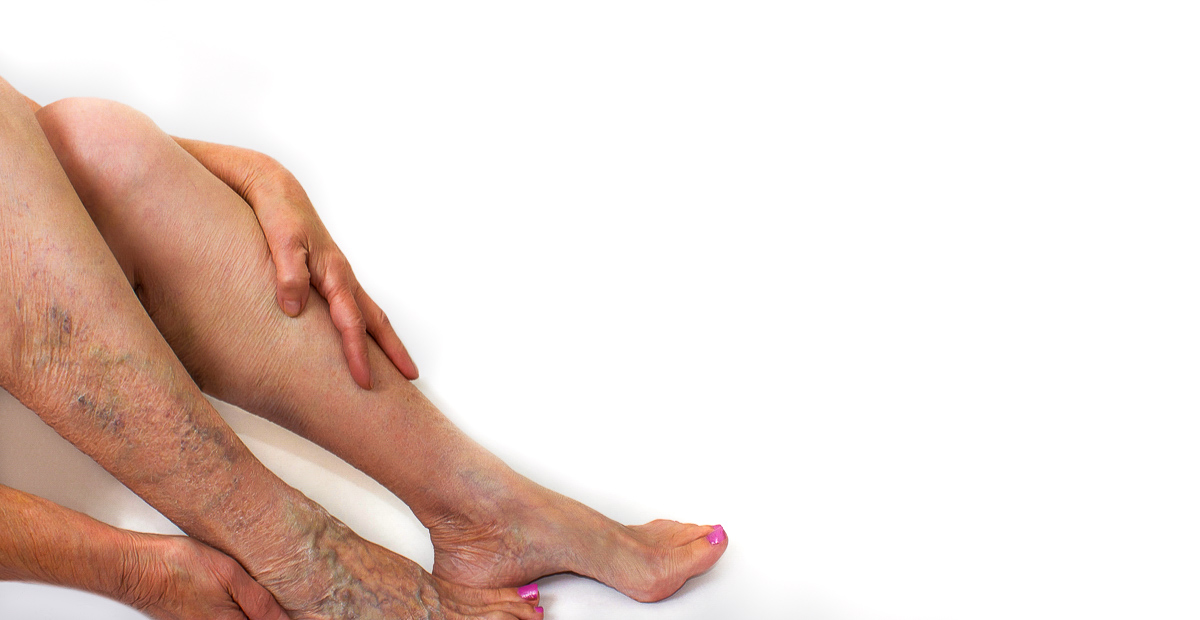 Varicose veins over the leg and foot