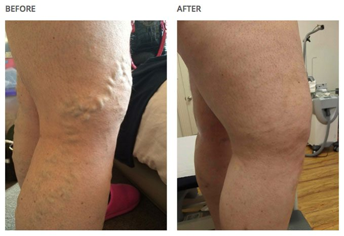 Closed up of before and after leg-results with varicose veins associated with aching on a clinic.