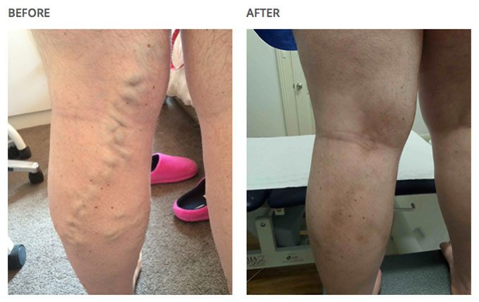 Before and after leg-results with varicose veins associated with aching on a clinic.