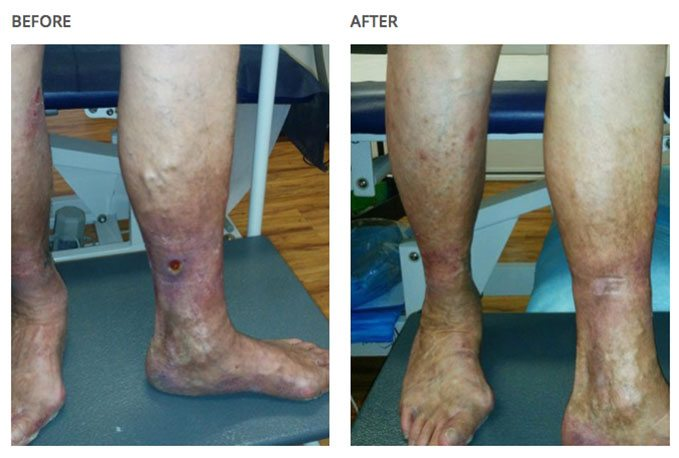 Before and after leg-results with varicose veins associated with aching, and by laser treatment.