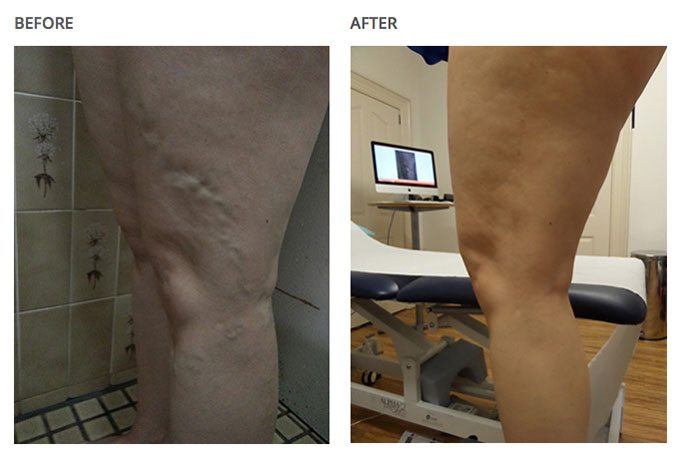 Before and after leg-results with varicose veins associated with aching, and by laser treatment on a clinic.