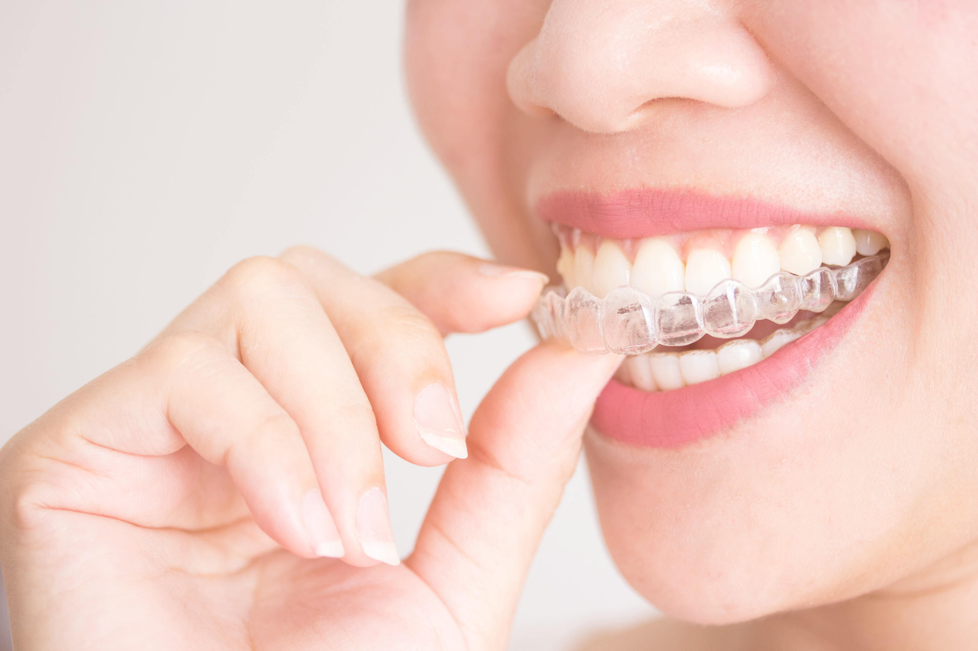 Straighten Your Teeth with Invisalign® Clear Aligners