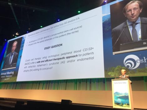 Carlos Simon, presenting treatment for Asherman's syndrome at ESHRE2017