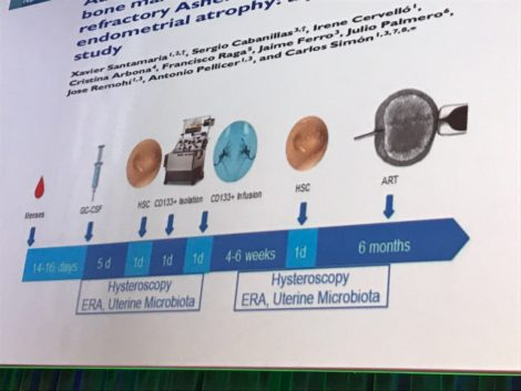 phase 2 treatment asherman syndrome presented in ESHRE2017
