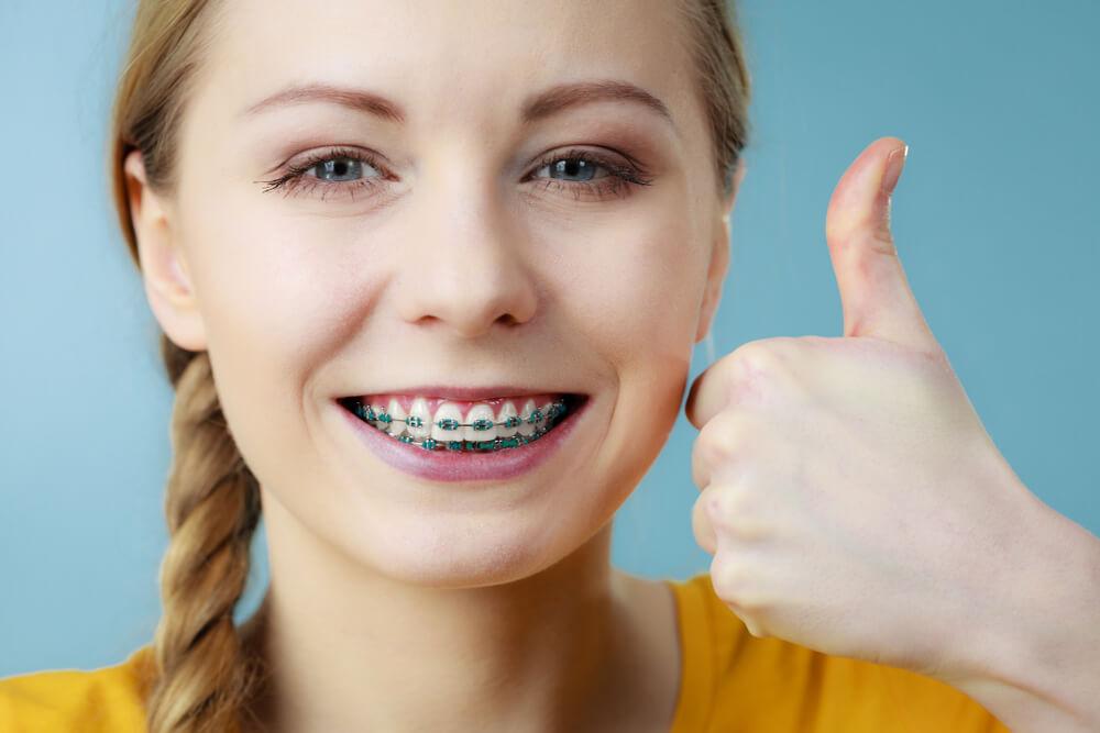 จัดฟันใส คืออะไร