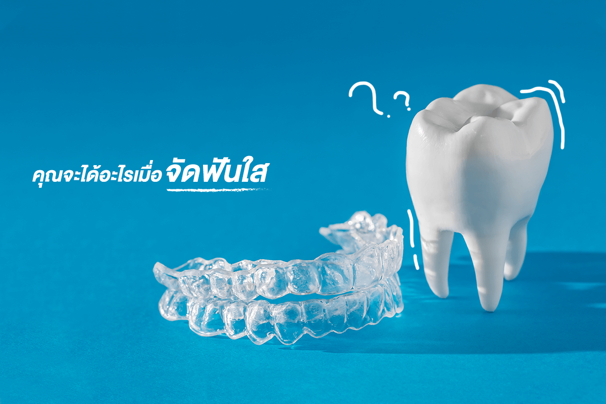 invisible-aligners-cover-1