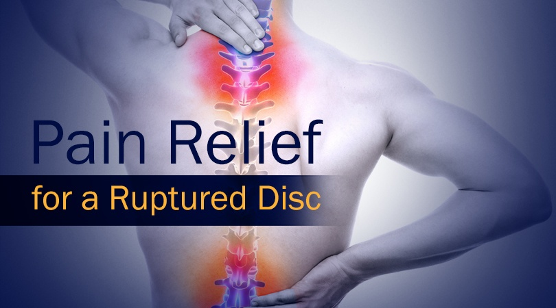 5 best options for pain relief for a ruptured disc, Human Body