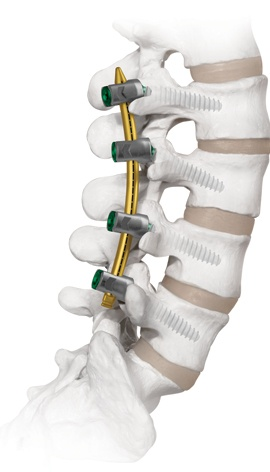 CREO_MIS_HACoated_spineview_R2.jpg