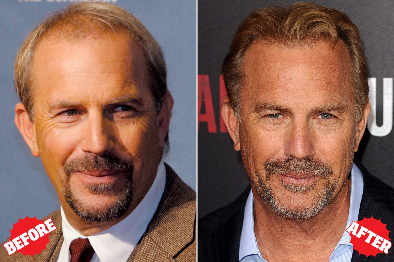 Celebrities Who Had Hair Transplant Surgery-3248