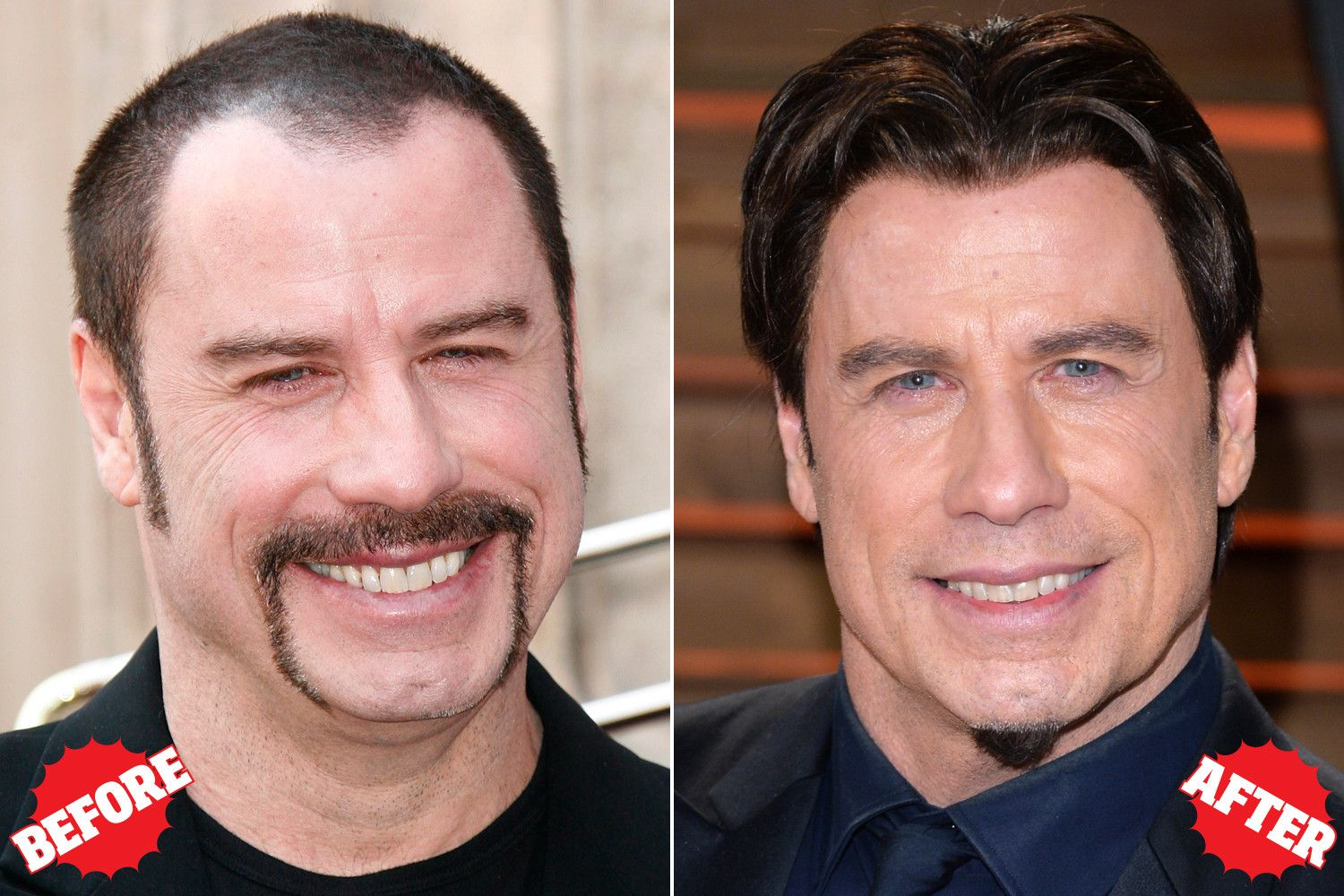Celebrities Who Had Hair Transplant Surgery