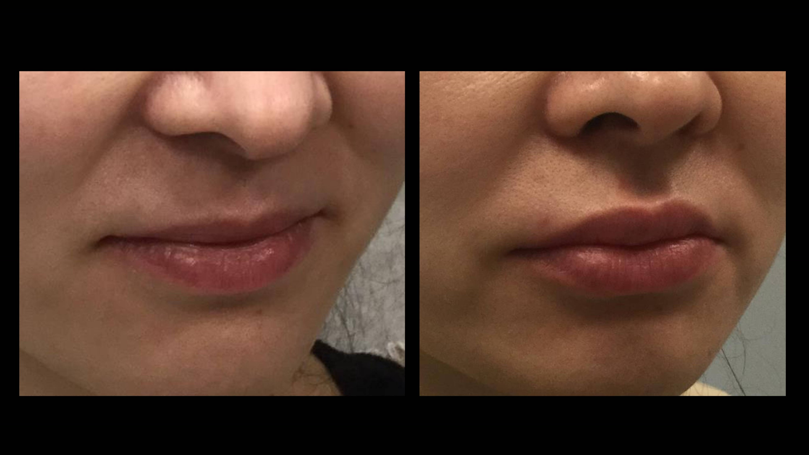 In Defense of Lip Injections.