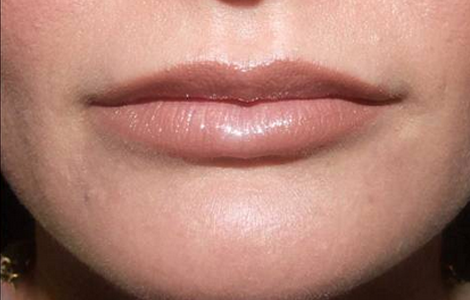 Lip Augmentation Baltimore - Lip Injections