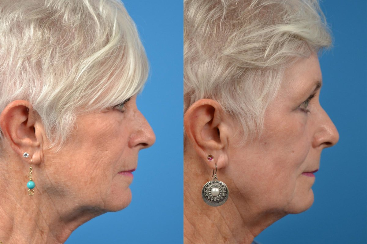 Skin Resurfacing Photos Melbourne Fl Patient 52364