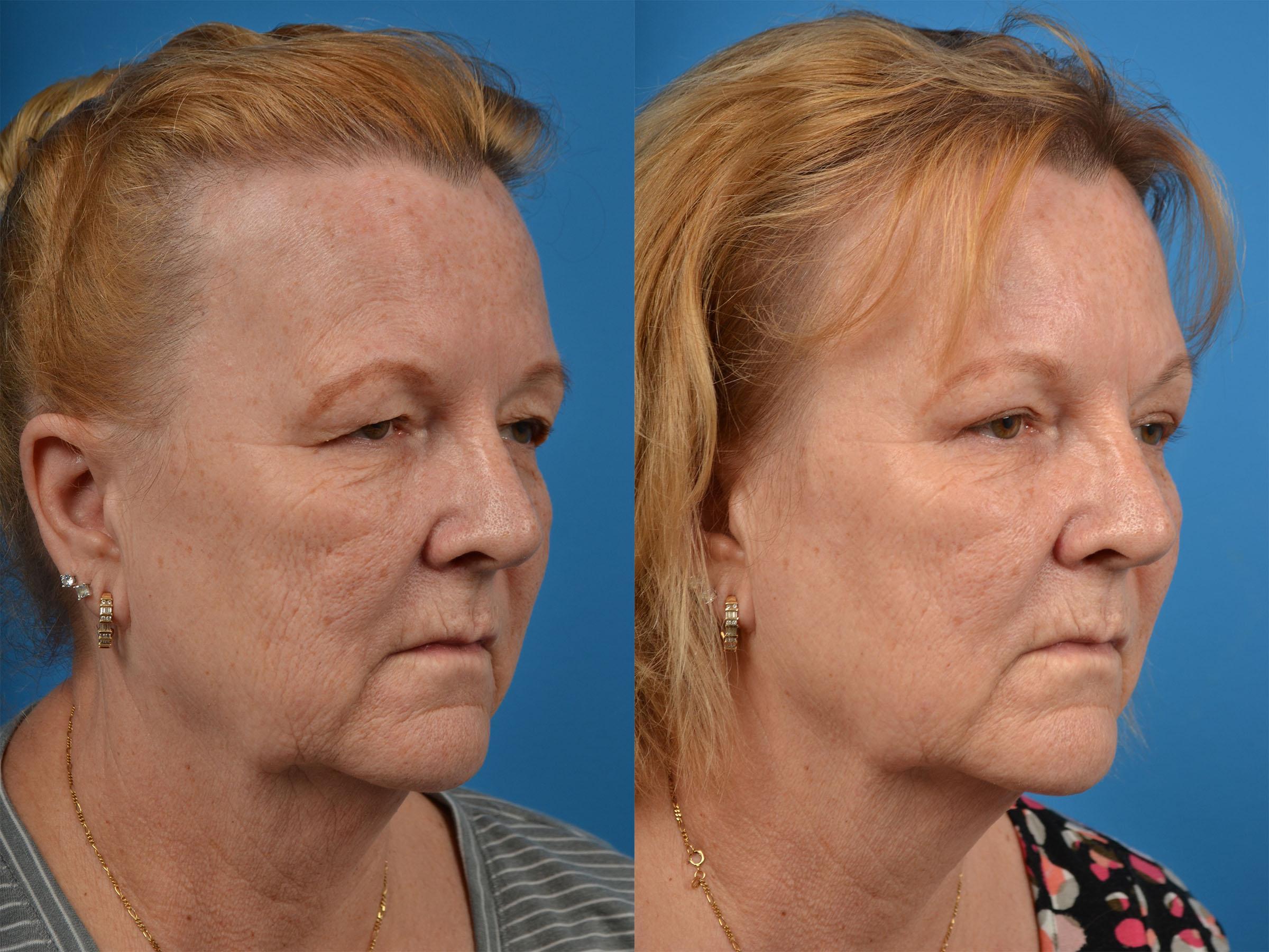 Brow Lift Photos | Melbourne, FL | Patient 56672