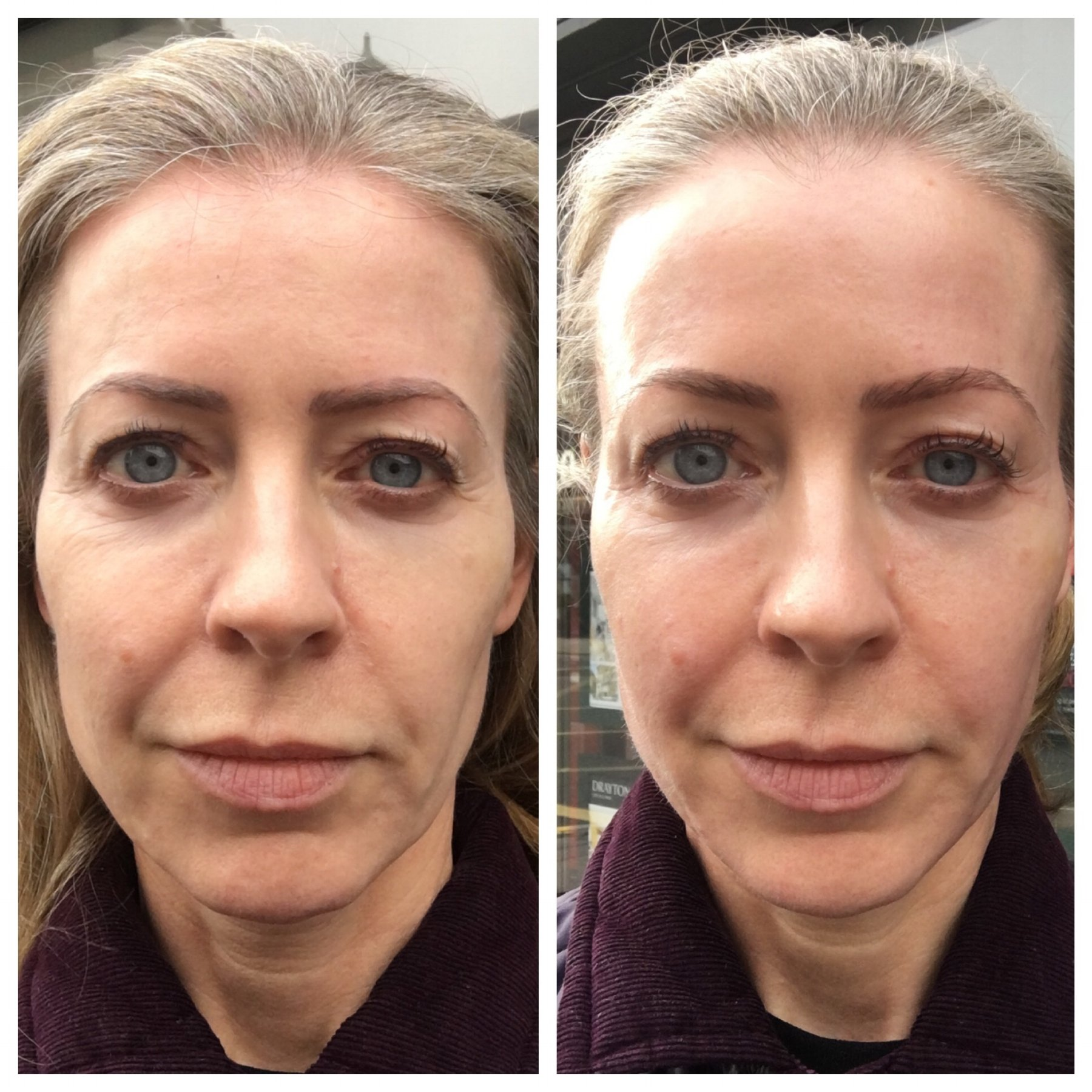 Before and after the Facegym workout - in merciless daylight