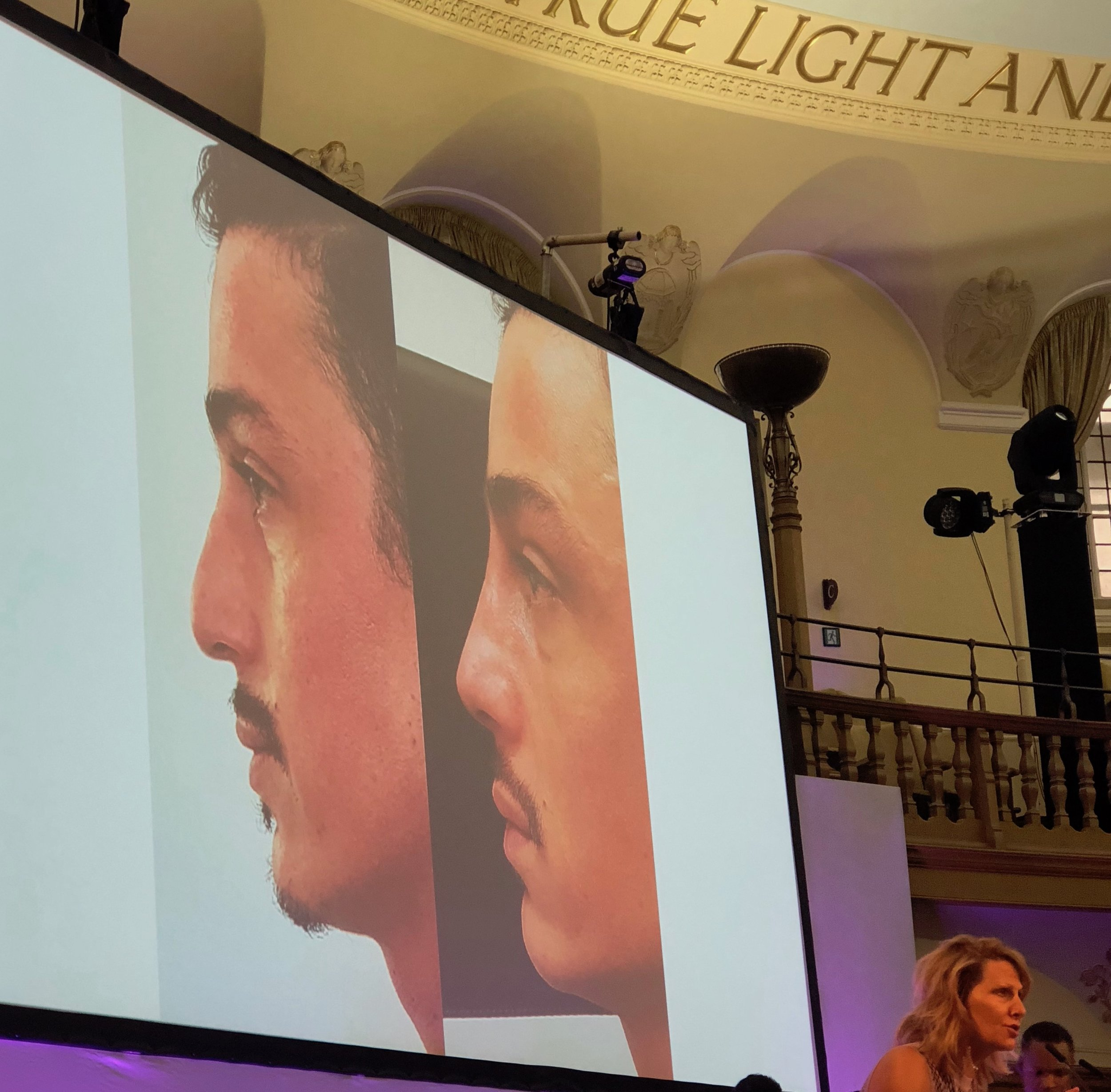 BCAM conference 2018: non-surgical nose straightening by Dr Zack Ally