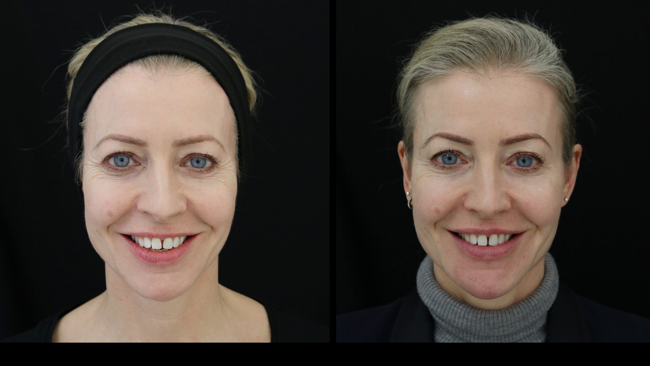 Filler in my temples and outer cheeks helps support the eyebrows and mid-face