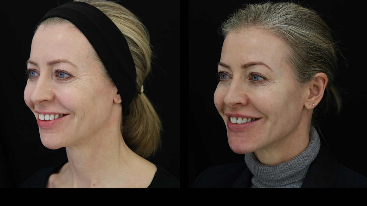 10ml of filler - without distorting my face