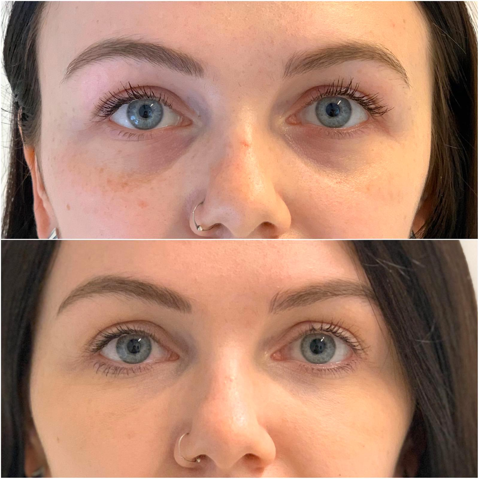patient before and after tear trough treatment