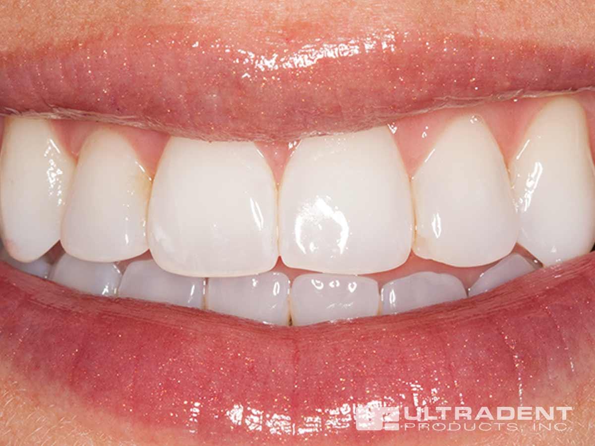 Enamelast Teeth Before Application.jpg