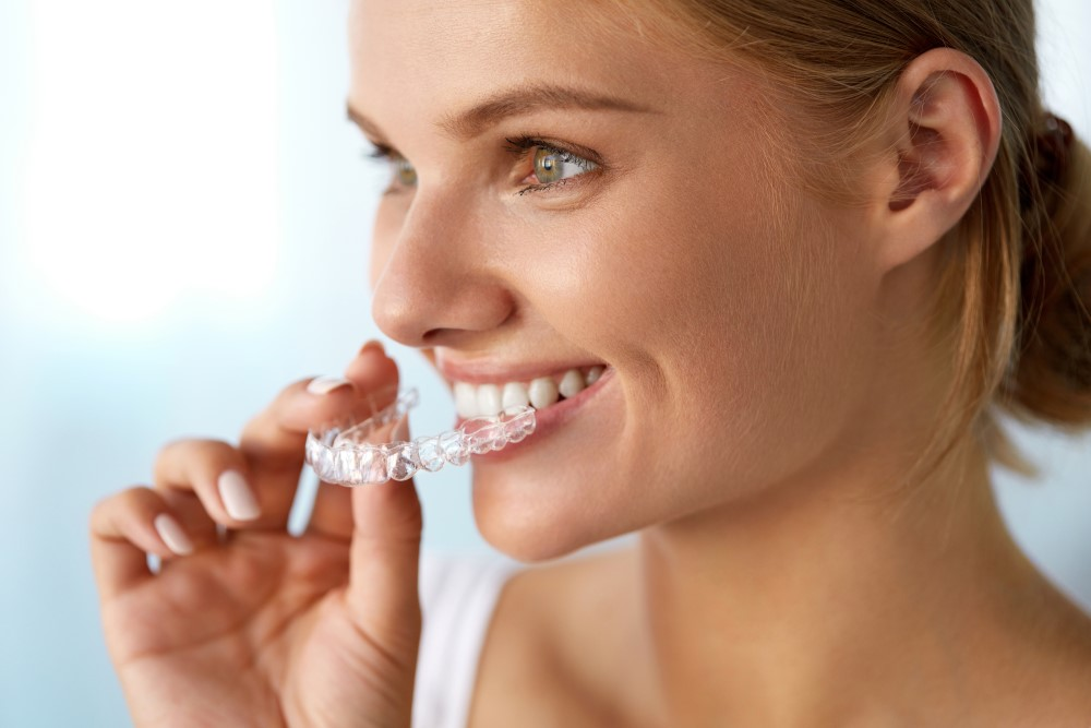 Why you need to visit the Hunter's only Platinum provider for Invisalign