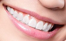 cosmetic_dentistry-3