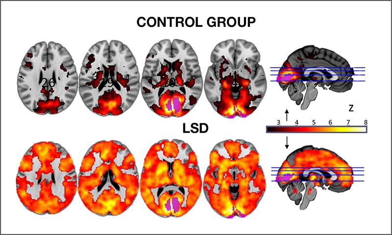 LSD_Blog
