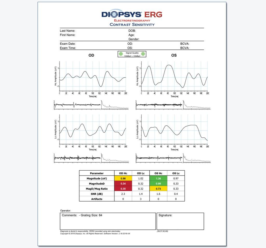 Diopsys-ERG-Contrast-Sensitivity-Glaucoma-1024x955.jpg